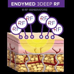 ENDYMED 3DEEP diagram